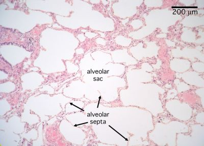 Lung Histology - Lung (labels) - histology slide