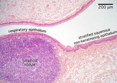 Larynx Histology - Epiglottis (labels) - histology slide