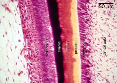 Tooth Histology - Tooth, pig (labels) - histology slide