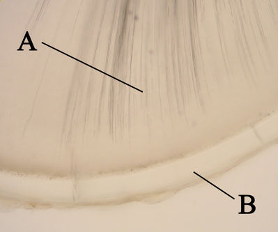 Tooth Histology - Tooth - histology slide