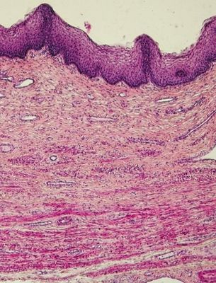 Vaginal tissue - histology slide