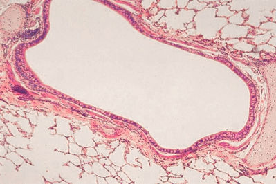 Lung Histology - Bronchus - histology slide