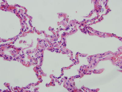 Lung Histology - Lung - histology slide