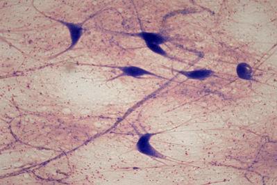 Multipolar Neuron Slide | www.pixshark.com - Images ...