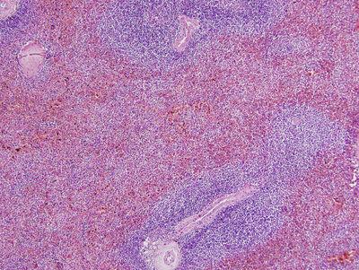 Spleen Histology - Spleen - histology slide