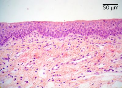 Larynx Histology - Epiglottis - histology slide Epiglottis Histology Labeled