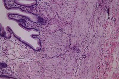 Histology-World! Audio Histology Slide-Gallbladder