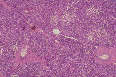 pancreas slide - photo #19